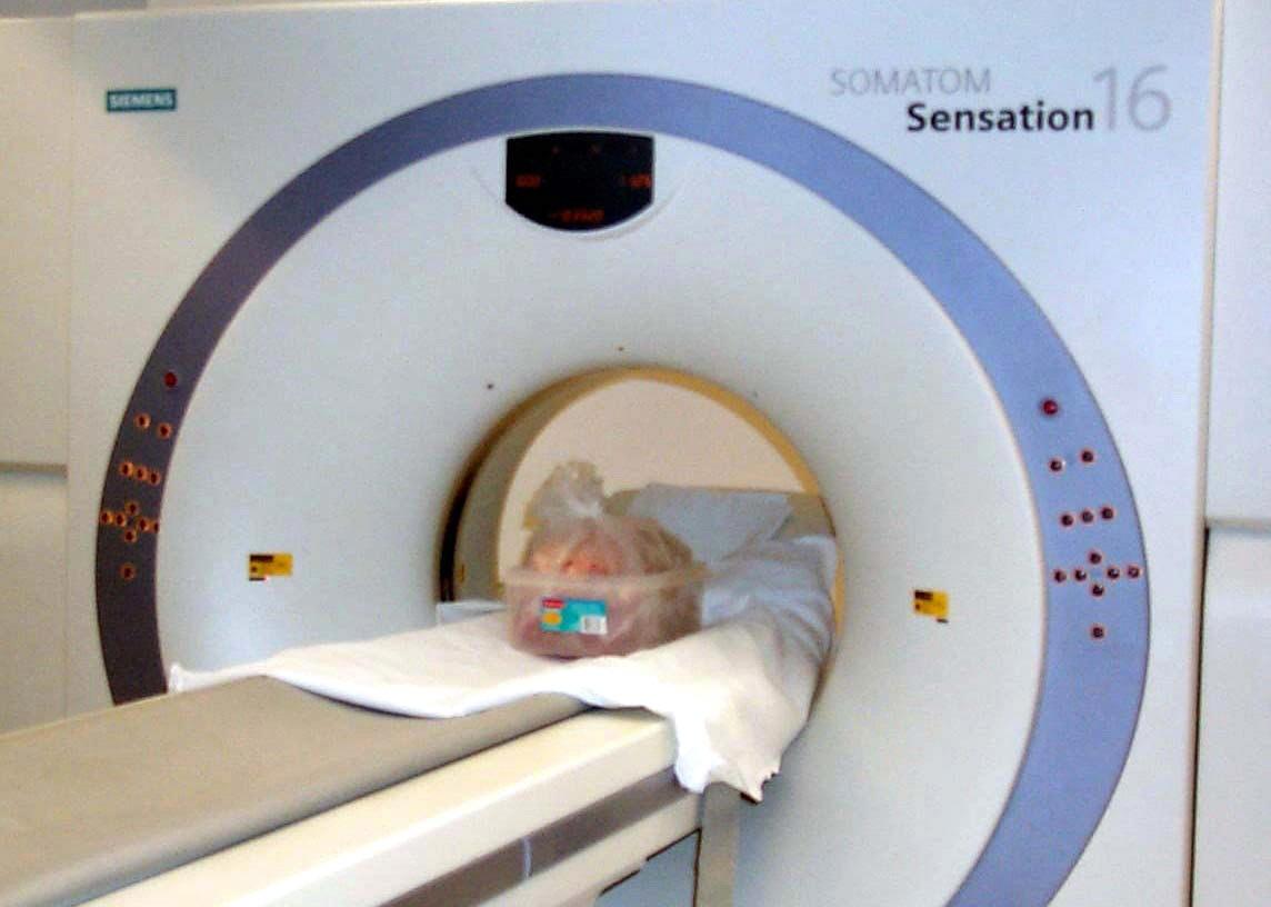 ct scan longen